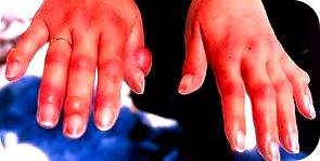 frostbite-hands3